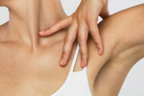 Hiperdrosis axilar o exceso de sudoración en axilas