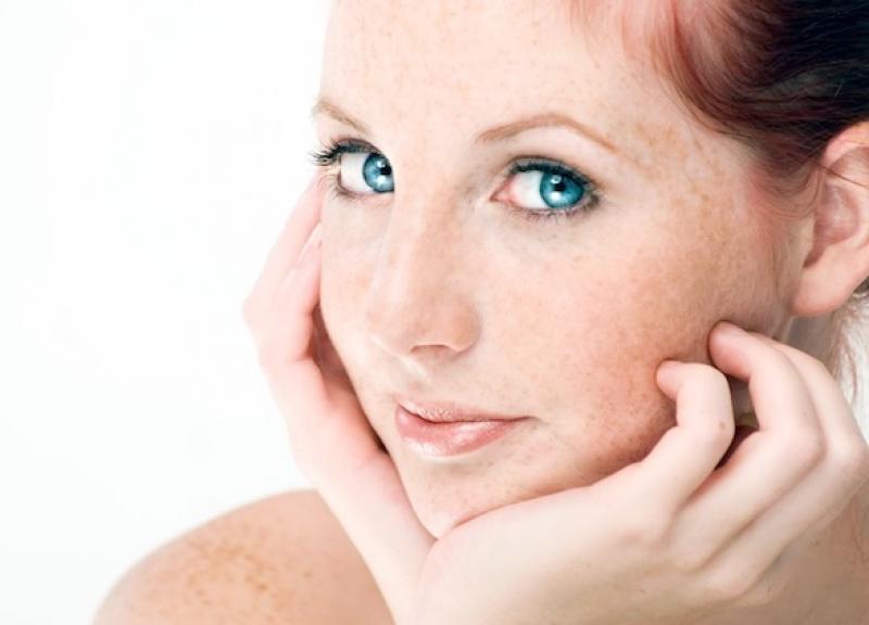 Melasma, aparición de manchas en el rostro