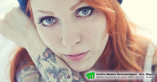 eliminación de tatuajes mediante laser - madrid