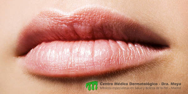 Embellece tus labios con ácido hialurónico
