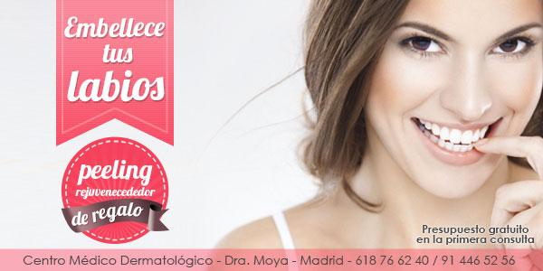 Tratamiento de embellecimiento de tus labios con ácido hialurónico